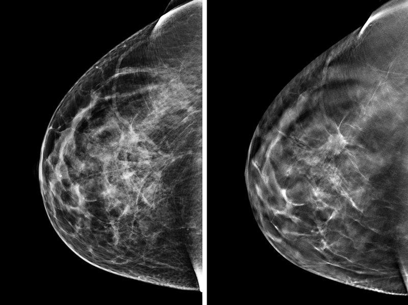 Mamografía en DF